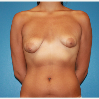 18-24 year old woman treated with Breast Lift before 3542705