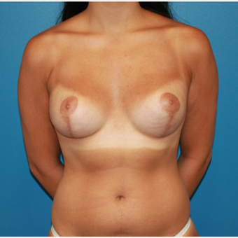 18-24 year old woman treated with Breast Lift after 3542705