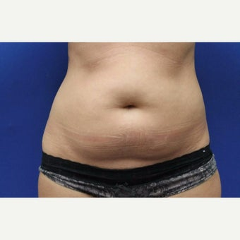 42 year old woman treated with Slim Lipo before 1770727