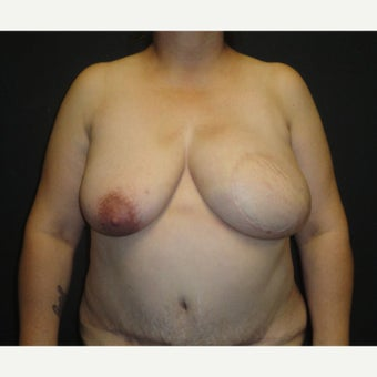45-54 year old woman treated with Breast Reconstruction after 1895735