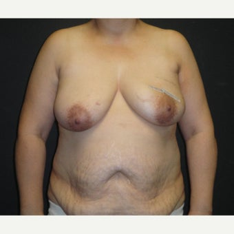45-54 year old woman treated with Breast Reconstruction before 1895735