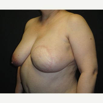 45-54 year old woman treated with Breast Reconstruction 1895735