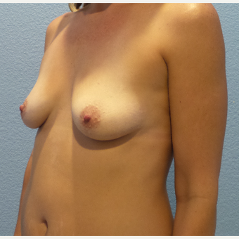 41 year old woman treated with Breast Augmentation - 650 cc high profile silicone gel implants before 3432343