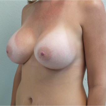 41 year old woman treated with Breast Augmentation - 650 cc high profile silicone gel implants after 3432343