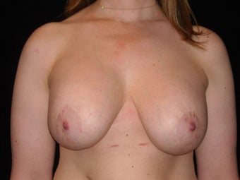 37 year old is happy to be implant free and she loves her perky breasts. before 1149022