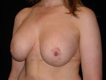 37 year old is happy to be implant free and she loves her perky breasts. 1149022