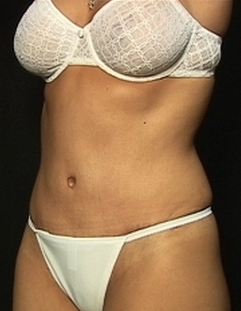Abdominoplasty  after 1518847