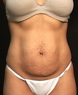 Abdominoplasty  1518847