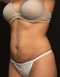 Abdominoplasty  before 1518847