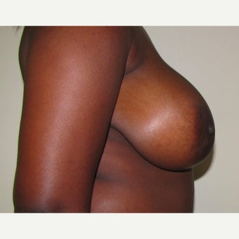 25 year old woman treated with anchor incision Breast Reduction before 2625989