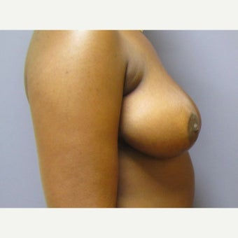 25 year old woman treated with anchor incision Breast Reduction after 2625989