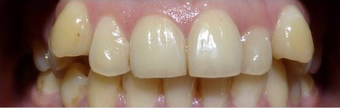 Damon Braces before 3135156