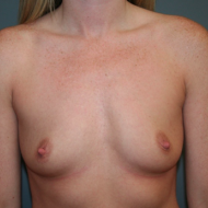 25-34 year old woman treated with Breast Augmentation before 3299832