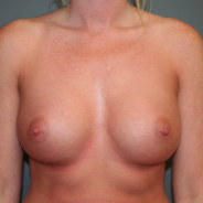 25-34 year old woman treated with Breast Augmentation after 3299832