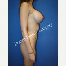 18-24 year old woman treated with Breast Implants 1606610