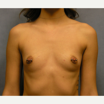18-24 year old woman treated with Breast Augmentation before 3635883