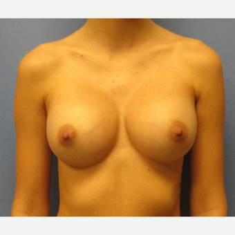 18-24 year old woman treated with Breast Augmentation after 3635883
