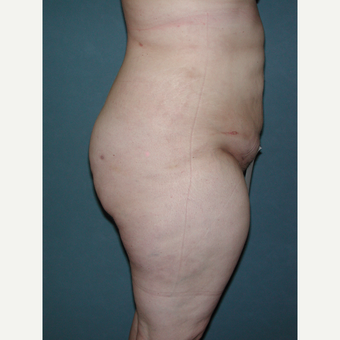 25-34 year old woman treated with Tummy Tuck after 3453309