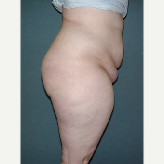 25-34 year old woman treated with Tummy Tuck before 3453309