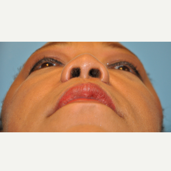 45-54 year old woman treated with Rhinoplasty after 3447059