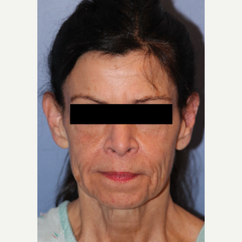65-74 year old woman treated with Facelift, Fat Grafting, Fractional CO2 Laser, Facial Fillers before 3215280