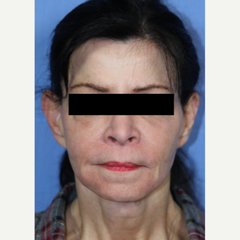 65-74 year old woman treated with Facelift, Fat Grafting, Fractional CO2 Laser, Facial Fillers after 3215280