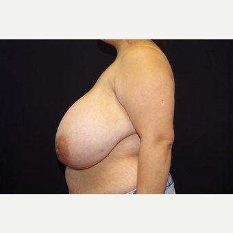 25-34 year old woman treated with Breast Reduction before 3123695