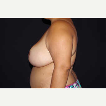 25-34 year old woman treated with Breast Reduction after 3123695