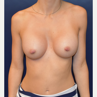 18-24 year old woman treated with Sientra Breast Implants after 3043697