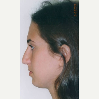 17 or under year old woman treated with Rhinoplasty before 3406482