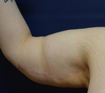 25-34 year old woman treated with Arm Lift after 2988580