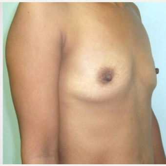 18-24 year old woman treated with Breast Augmentation before 3315524