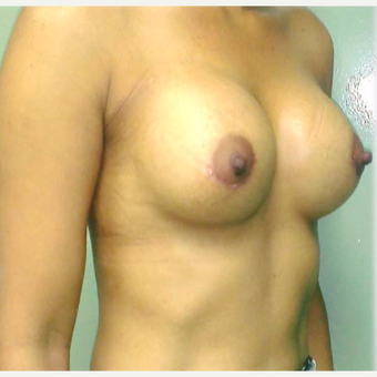 18-24 year old woman treated with Breast Augmentation after 3315524