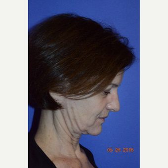 55-64 year old woman treated with Non Surgical Face Lift before 3226770