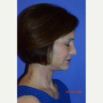 55-64 year old woman treated with Non Surgical Face Lift after 3226770