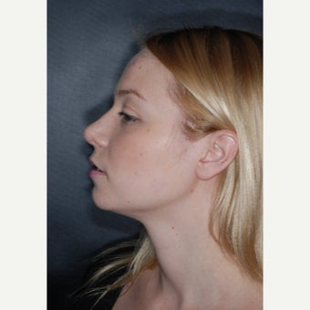 25-34 year old woman treated with Nose Surgery