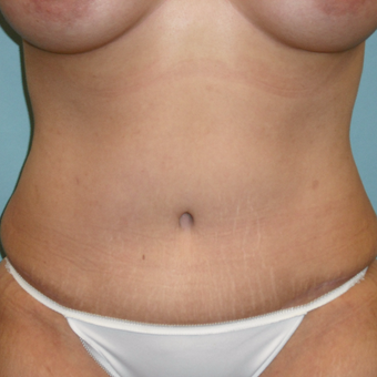 25-34 year old woman treated with Tummy Tuck after 3396981