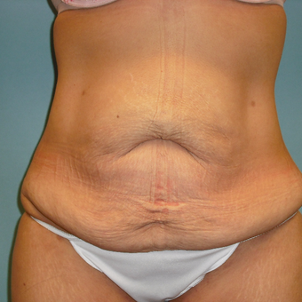 25-34 year old woman treated with Tummy Tuck before 3396981