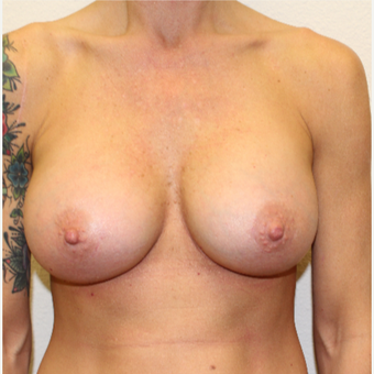 35-44 year old woman treated with Breast Augmentation after 3549744