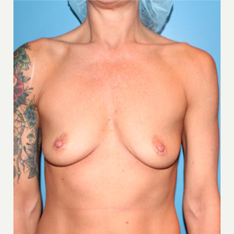 35-44 year old woman treated with Breast Augmentation before 3549744