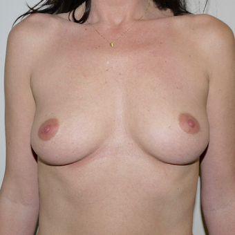 35-44 year old woman treated with Breast Augmentation before 3095767