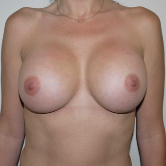 35-44 year old woman treated with Breast Augmentation after 3095767