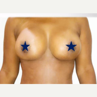 35-44 year old woman treated with Breast Lift with Implants after 3300473