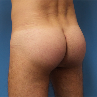 35-44 year old man treated with Butt Augmentation after 3341273