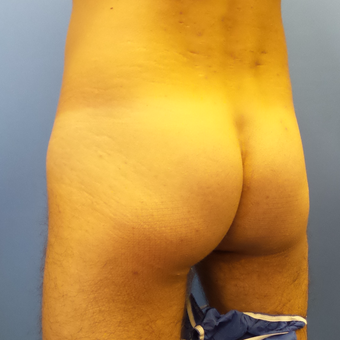 35-44 year old man treated with Butt Augmentation before 3341273