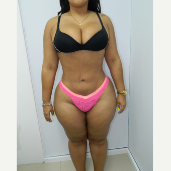 25-34 year old woman treated with Liposuction after 2900537