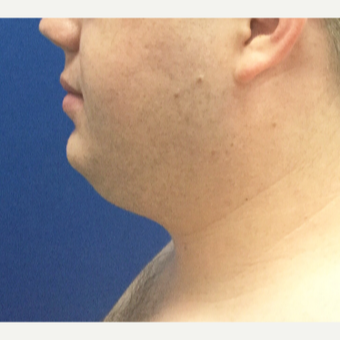 25-34 year old man treated with Chin Liposuction before 3496385