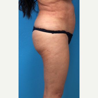 55-64 year old woman treated with Liposuction before 3266046