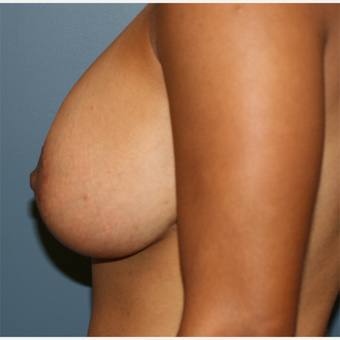 32 year old female Breast implants with lift after 3638906