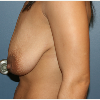 32 year old female Breast implants with lift before 3638906